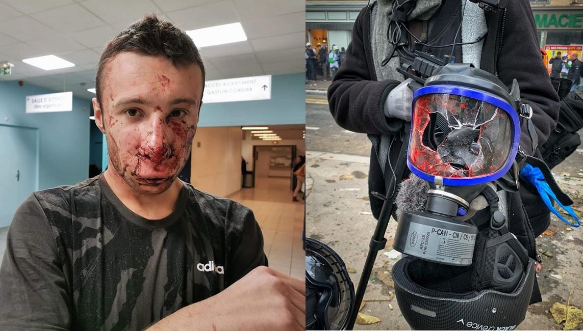 """Acte 53 : Julien, journaliste blessé : """"Ce serait à priori bien une grenade GLI F4 qui a été projetée en plein visage"""" - http://www.revolutionpermanente.fr/Section-Politique"""