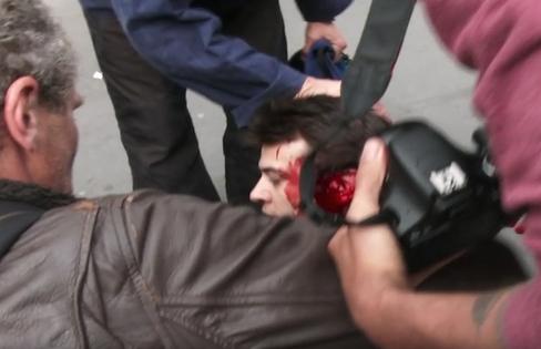 Manifestant grièvement blessé : la version de la police démentie par l'enquête