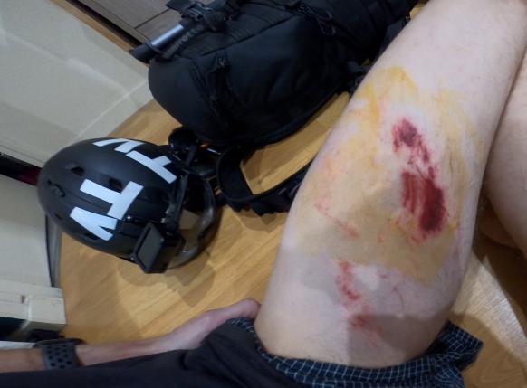 Acharnement policier contre Gaspard Glanz, blessé par une grenade à Paris