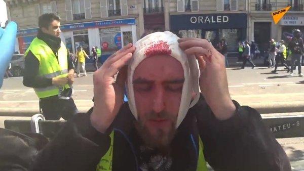 VIDEO. Un Gilet Jaune blessé à la tête près de la place de la république à Paris