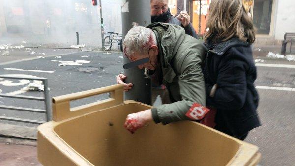 VIDEO. Rouen : un manifestant de 61 ans blessé à la tête après une charge ultra violente de la police