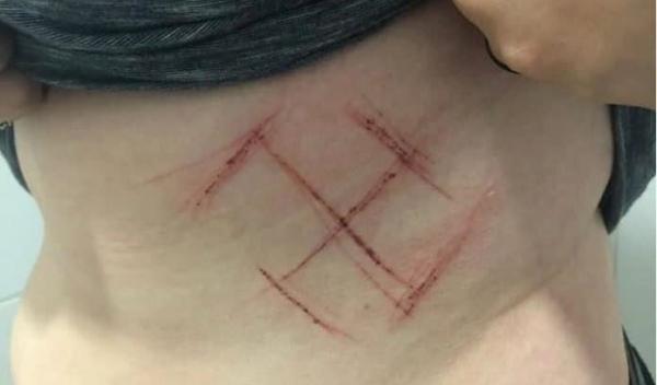 Brésil : une jeune femme mutilée au couteau, une croix gammée dessinée sur le ventre