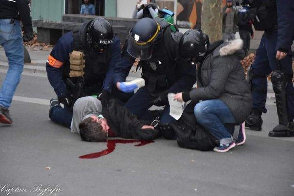 Victime d'un tir de flashball à la tête à Nantes, après 5 jours en réanimation, Adrien porte plainte