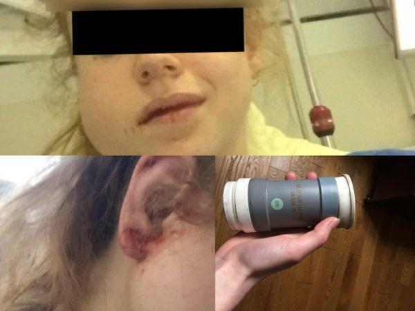 Témoignage. Un tir policier fracture la mâchoire d'une étudiante lors d'une manif pro-Palestine